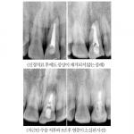 CT 및 현미경을 이용한 신경치료 및 치근단 수술 (사진제공: 루덴치과)