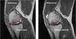 카티필(CartiFill, 연골조직수복용 콜라겐 필러)을 이용한 심각한 무릎연골 결손치료 전후의 연골조직 상태(붉은 화살표 지시 부분)를 자기공명영상(MRI)으로 촬영한 모습.  카티필 적용 전, 연골조직 전층이 결손상태(사진 왼쪽)를 보이고 있으나,  카티필 적용 후 1년이 경과한 시점에도 결손부위가 새로운 연골조직으로 완벽히 채워진 상태(사진 오른쪽)를 유지하고 있는 것을 확인할 수 있다(사진출처: ICRS 제10회 국제학술회의 포스터 발표