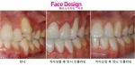 치아성형 사진 (사진제공: 페이스디자인치과)