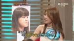 MBC 기분 좋은 날서 양악수술 2번한 박소은씨 인생역전 화제 (사진제공: 페이스라인 성형외과)