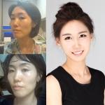 부정교합 '노안굴욕녀' 김채연씨가 양악수술 후 이수경 도플갱어로 변신에 성공해 화제다.