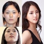오각녀 성형 후, 소녀시대 유리 닮은 꼴 변신 화제