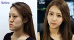 렛미인3 울상녀 방미정 씨가 소녀시대 윤아를 닮은 역대 최고 렛미인으로 등극해 화제를 모으고 있다.
