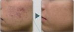 (Example) Before and after Aquatouch use – Acne treatment
