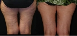 (Example) Before (left) and after (right) the cellulite treatment using Decell
