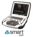 테라손, uSmart® 3300 초음파 시스템 출시