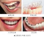비밀 치아교정으로 티 안나게 교정할 수 있는 방법을 소개한다.
