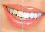 치아미백 전과 후