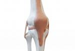 무릎뼈와 인대 모형