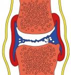 지나친 냉방으로 퇴행성관절염이 악화되는 경우가 있다.