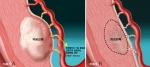 자궁근종 색전술 치료 후 자궁 속 근종의 변화된 사진이다.