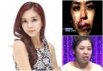 렛미인4 무너진 반쪽얼굴 김희은이 절대미모의 동안미녀로 대 변신해 큰 화제를 모으고 있다. (사진제공: 페이스라인 성형외과)