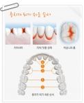 충치는 치아 사이, 치아와 잇몸 사이, 치아 안쪽, 어금니 윗면 등 양치질이 잘 안 되는 부위에 잘 발생한다.