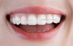 '앞니교정'은 앞니 배열상태, 나이, 성별, 건강상태에 따라 3~6개월의 단기간에 아름다운 치아라인을 완성할 수 있다는 장점이 있다.