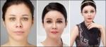 KBS 2TV 미녀들의 수다에 출연해 활약하던 러시아 출신 모델 겸 배우 라리사의 성형 후 모습이 다시 화제가 되고 있다.