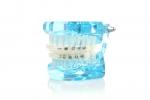 노블마인드 치아교정용장치 제품 착용 모습