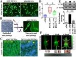 항박테리아 효능이 있는 리포칼린 단백질이 암세포 전이에 매우 효과적으로 작용한다는 입증 결과임. 이 결과를 전제로 BRM270의 전이효과 실험을 진행함