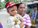 3월 30일 함께하는 사랑밭이 미얀마 화상 환아인 아웅툰울을 한국으로 초청했다