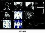 인공지능 기반 전립선 MR 의료영상 분석 솔루션 JPC-01K