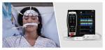 O3® 리지오널 옥시메트리와 연결된 마시모 루트와 SedLine® 뇌 기능 모니터링