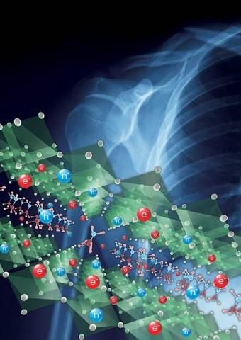 삼성전자, 피폭량을 1/10로 줄인 고감도 X-ray 디텍터 기술 개발