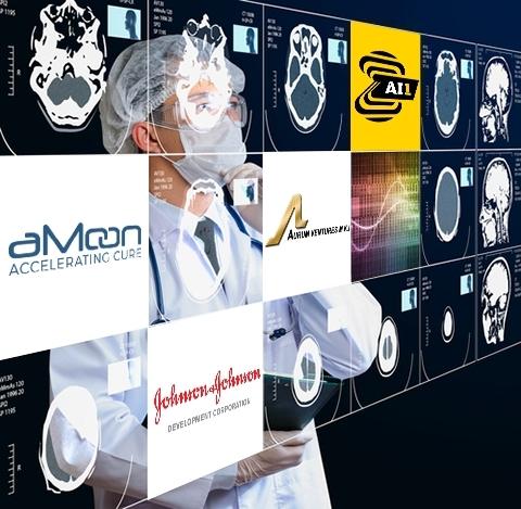 제브라 메디컬 비전이 3000만달러 자금 조달과 가장 광범위하고 자동화된 AI기반 흉부 X레이 연구 결과를 발표했다