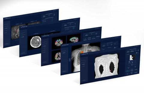 제이엘케이인스펙션의 CE 인증 제품들의 분석 화면