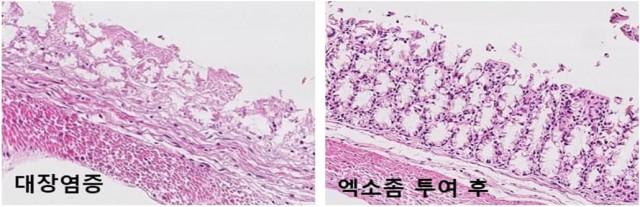 대장염증 유도군 대비 엑소좀 투여군에서 손상된 장조직 개선(84.2%)