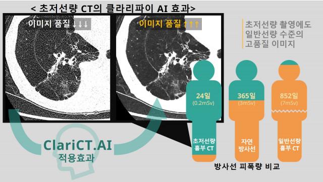 초저선량 흉부 CT, 자연 방사선, 일반선량 흉부 CT의 피폭량 비교 자료 및 초저선량 흉부 CT 촬영 이미지의 ClariCT.AI를 적용해 잡음 제거로 이미지 품질을 올린 전후 비교