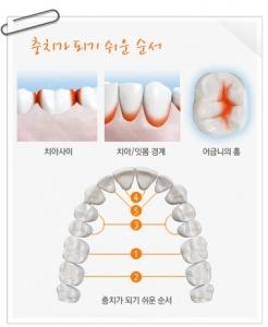 충치는 치아 사이, 치아와 잇몸 사이, 치아 안쪽, 어금니 윗면 등 양치질이 잘 안 되는 부위에 잘 발생한다. (사진제공: 네모치과병원)