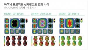 녹색뇌 프로젝트 참여자 신체활성도 변화 사례