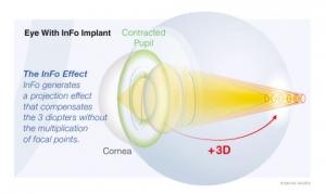 스위스 어드밴스드 비전(Swiss Advanced Vision)(SAV-IOL SA)이 새로운 인공수정체(IOL)인 InFo를 출시했다. (사진제공: SAV-IOL SA)