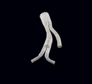 '고어 익스클루더 장골가지 관내 인공삽입물'(GORE® EXCLUDER® Iliac Branch Endoprosthesis, 약칭 IBE)은 미국에서 승인된 최초의 대동맥 가지용 기성 장치이자 총장골동맥 또는 대동맥장골동맥의 혈관내 치료로 적응증이 인정된 유일한 장치이다. 동종 최초인 이 장치는 완벽한 공학 시스템(고어는 장골가지와 내장골 부품을 설계했다)으로 2013년 CE인증(CE Mark)을 획득했다. (사진제공: W. L. Gore & Associates, Inc.)