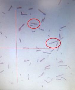 그람을 염색하여 전자현미경으로 균주를 확인하는 과정