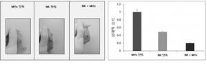 세포치료제 조성물과 NK세포 병용투여 시 암세포 크기 변화