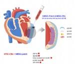 건국대가 가톨릭대 연구팀과 복합줄기세포 활용 중증 심근경색 치료법을 개발했다