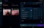 인공지능 기반 자궁경부암 의료영상 보조 진단소프트웨어