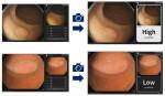 NEC, 대장 병변의 종양성 판단 지원하는 AI 기술 개발