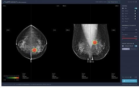 식품의약품안전처 허가를 받은 유방암 진단 보조 소프트웨어 '루닛 인사이트 MMG' 온라인 데모 웹사이트 화면
