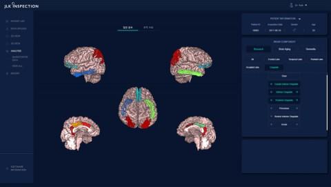 ATROSCAN의 뇌 MR 영상 분석 화면