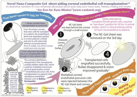 폴리머 칵테일과 나노 복합 젤 시트를 사용, 수포각막병을 위해 실험실에서 임상시험으로  각막 내피세포를 이식한다