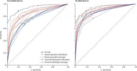 AI의 도움을 받기 전과 후의 판독 정확도 변화 그래프(ROC 커브)