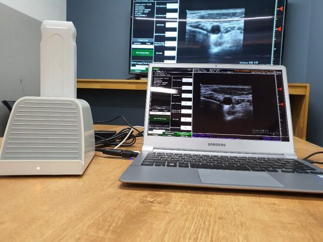 아이도트의 경동맥 초음파 인공지능 시스템