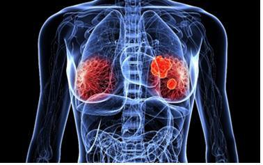 면역세포치료제 전문기업 이뮤니스바이오가 유방암 치료제 임상 승인을 받아 신약 개발을 본격화한다(출처: shutterstock)
