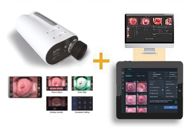 인공지능 기반 자궁경부암 스크리닝 시스템 '써비레이(Cerviray)'