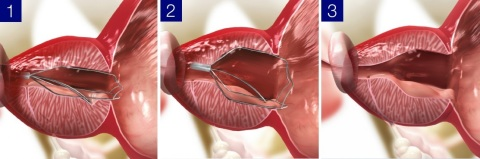 iTind, a temporarily implanted nitinol device, supports the relief of LUTS due to BPH in a minimally...